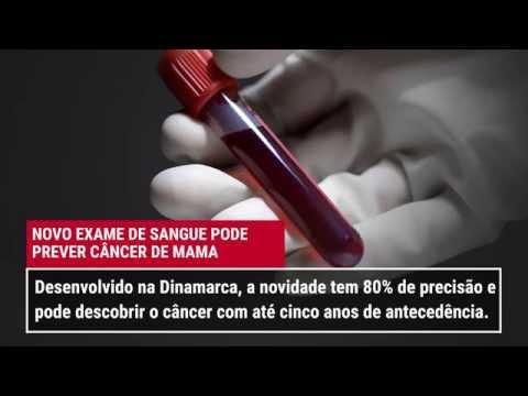 O novo exame que prevê o câncer de mama