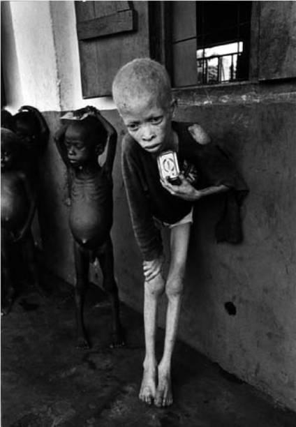 A Guerra Civil da Nigéria, ocorrida no final dos anos1960, matou mais de um milhão de pessoas –a maioria, de fome. Nesta imagem, uma criança que desenvolveu Kwashiorkor, uma forma agudade desnutrição.