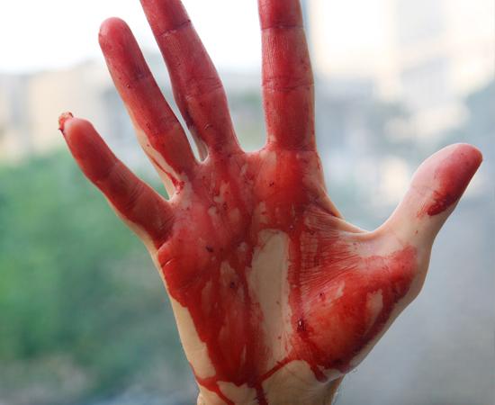 FETICHE DE SANGUE - Obtenção de prazer sexual ao ver uma pessoa sangrar. No caso específico de Menofilia, há atração sexual por sangue de menstruação.