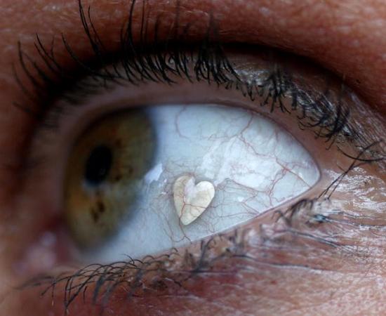 OCULOFILIA - Sentir excitação ao lamber o globo ocular de outra pessoa, ou ter seus olhos lambidos por alguém.
