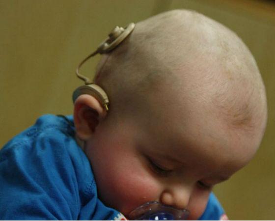 O implante coclear, também conhecido como ouvido biônico, foi lembrado por 4,1% dos internautas. Isso lhe rendeu o 7º lugar na lista.
