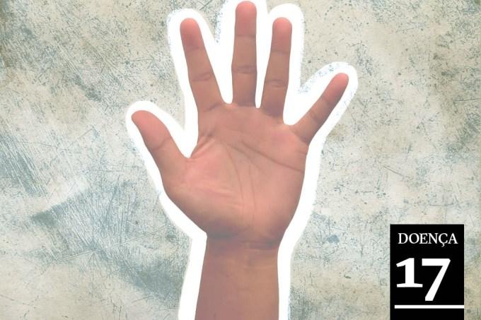 AS 24 DOENÇAS MAIS RARAS (E ESTRANHAS) DO MUNDO: Síndrome da Mão Alheia