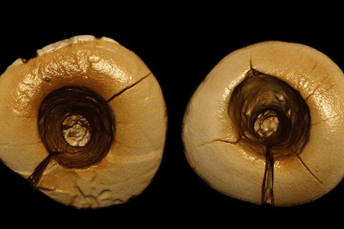 Encontrados na Itália dentes de 13 mil anos com restaurações.