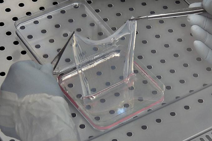 Usando células tronco transgênicas, cientistas plantam pele nova em garoto com 80% do corpo exposto