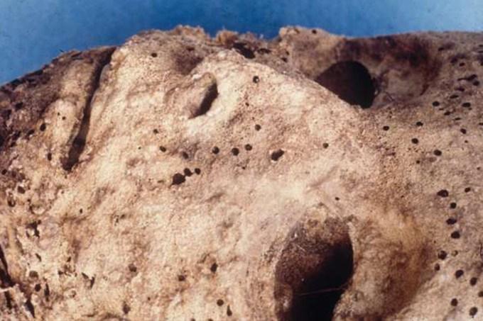 Descoberto vírus da hepatite B em múmia de 500 anos – o caso mais antigo da história