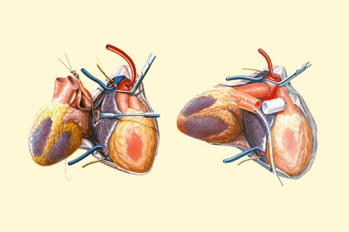 Homem recebe transplante raríssimo e vive com dois corações