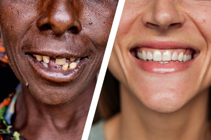 Projeto fotográfico mostra a cara da riqueza — e da pobreza