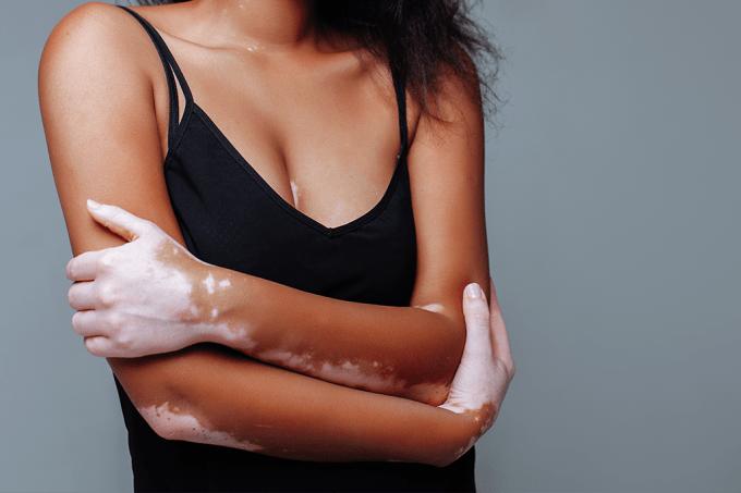 XX coisas que você não sabia sobre o vitiligo_home
