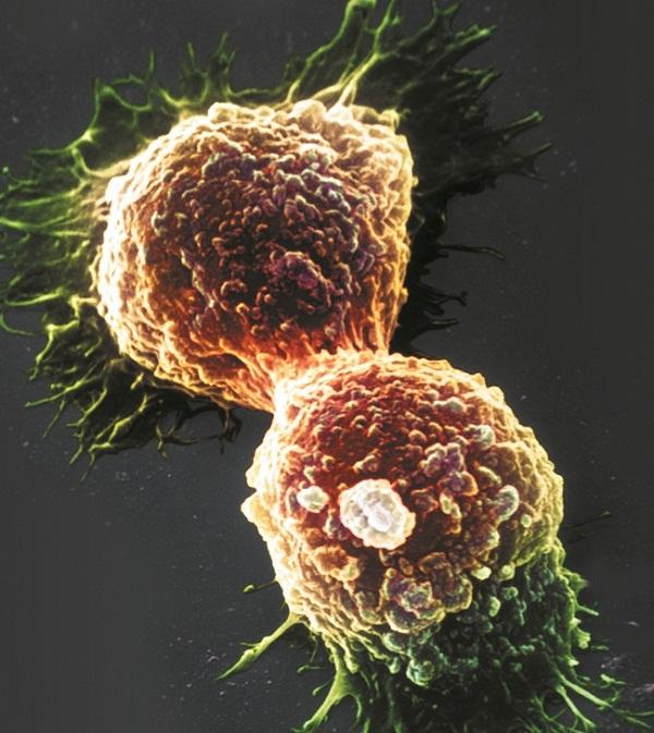 quais-sao-os-principais-tipos-de-cancer-e-os-mais-letais