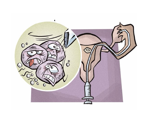 fertilizacao-in-vitro-2