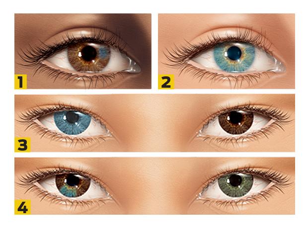 heterocromia numerada