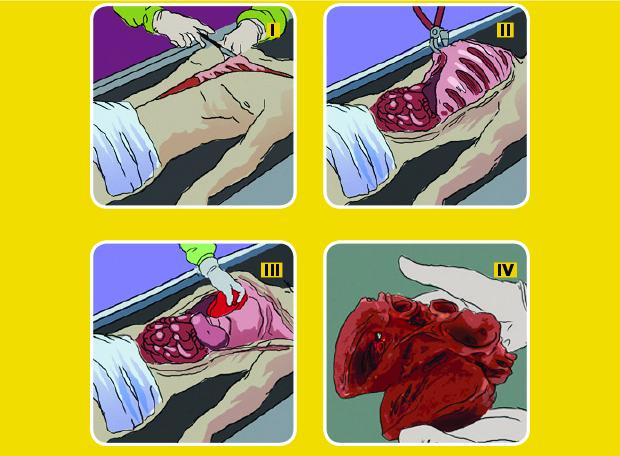Autópsia Orgãos