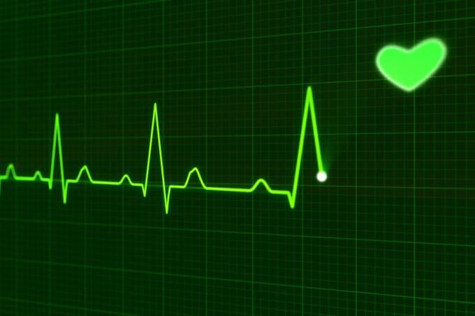 57a10e160e21634575247f89ekg-electrocardiogram.jpeg
