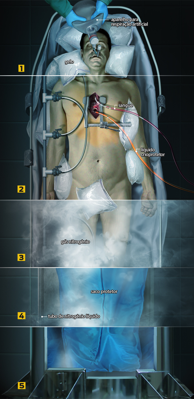 Como funciona a criogenia?