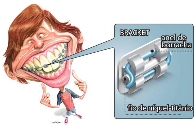 Como os aparelhos corrigem os dentes das pessoas?