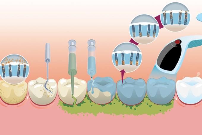 Como é feito o clareamento dental?