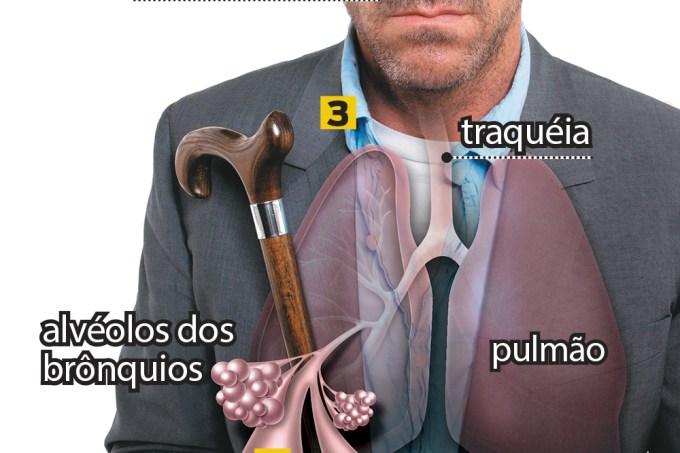 Qual é a diferença entre asma, rinite, bronquite e sinusite?