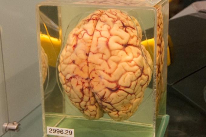 human_brain_preserved_in_formaldehyde