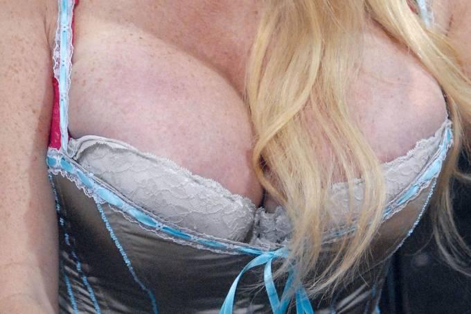Como se faz uma cirurgia  de redução da mama?