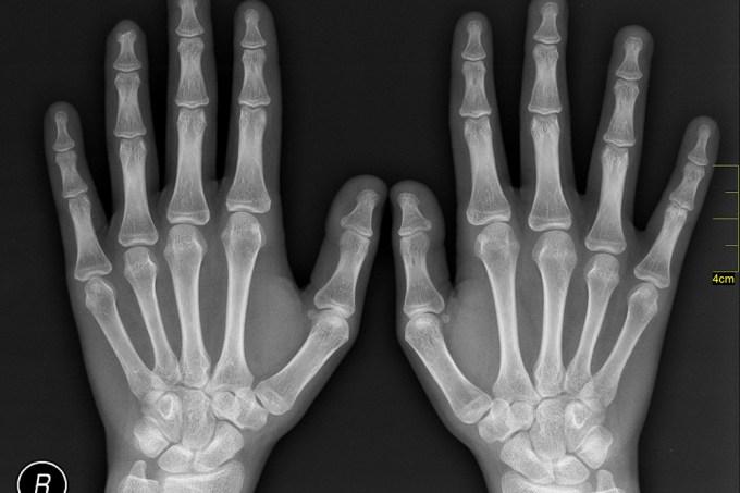Qual é a diferença entre raios X e body scanner?