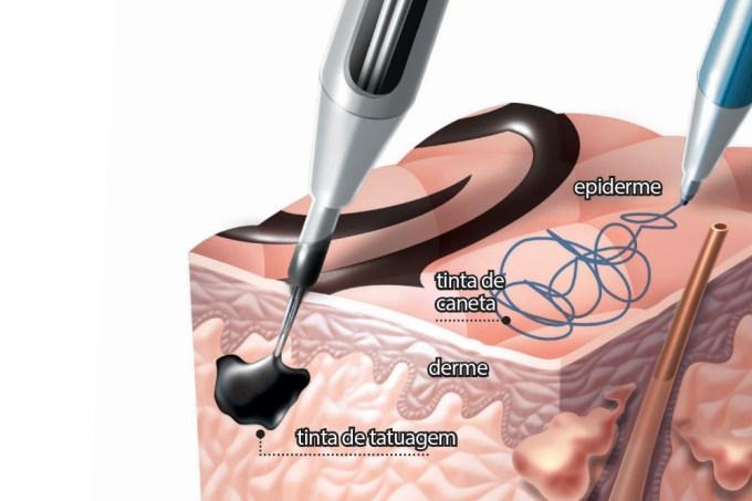 Se as célular da pele se renovam, por que a tatuagem não sai com o tempo?