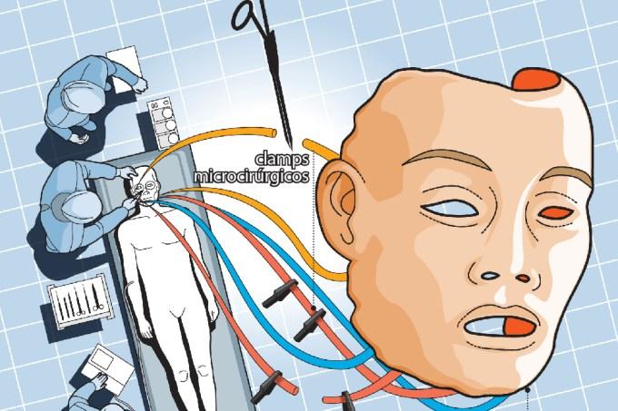 Como é feito um transplante facial?