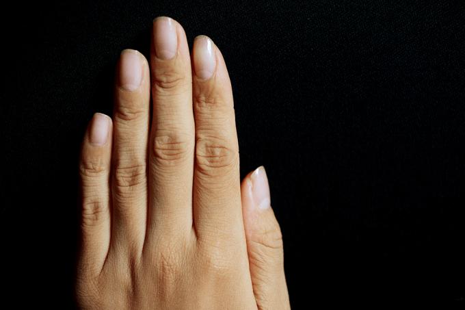 Aplicativo diz se você tem anemia a partir de fotos das unhas