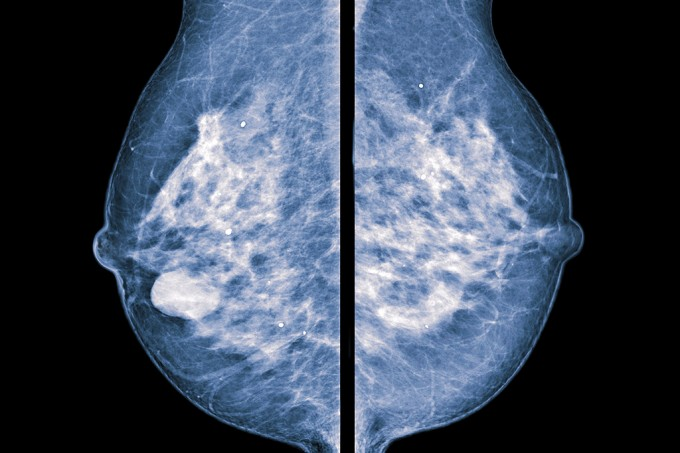 inteligencia-artificial-cancer-mama