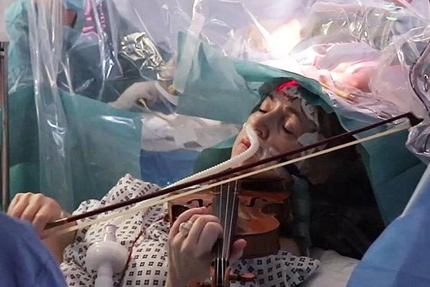 King's College Hospital_reproducao_mulher_toca_violino_cirurgia_cerebro
