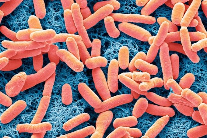 SI_bacteria_ecolli