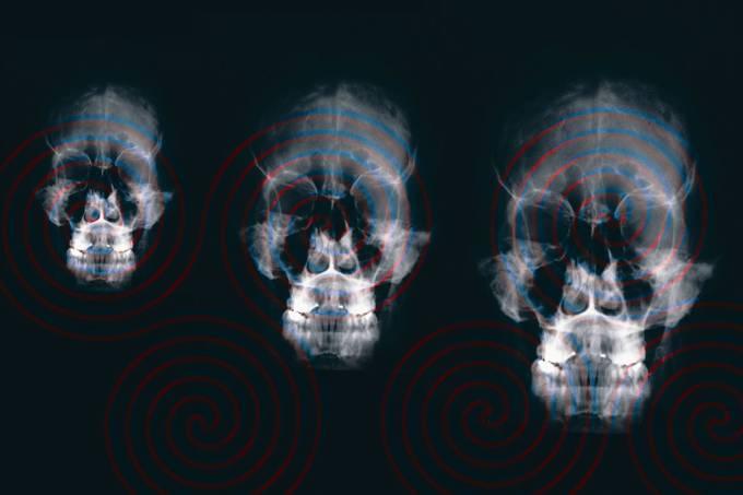 SI_Hipnose_cerebro
