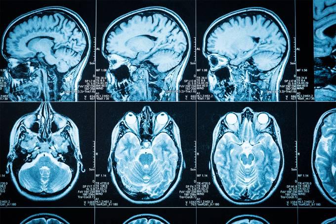 Coronavírus pode causar sintomas neurológicos em alguns pacientes