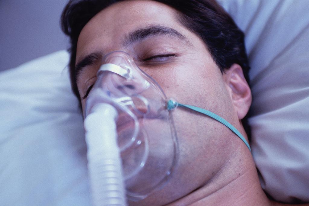 Casos de síndrome respiratória aguda grave avançam no Brasil