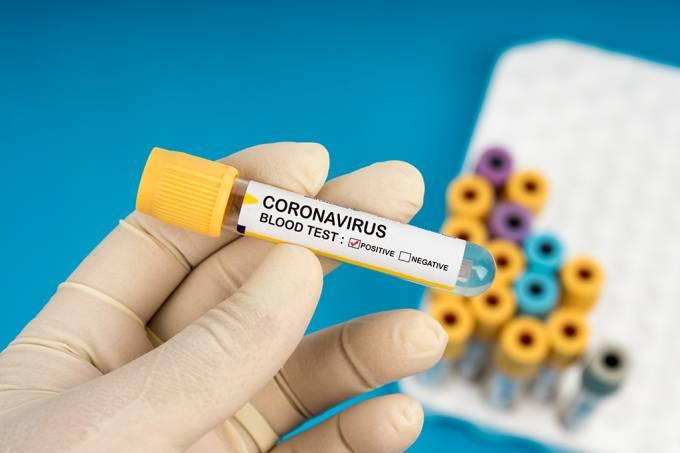 Pesquisa indica que cerca de 45% dos casos de covid-19 são assintomáticos