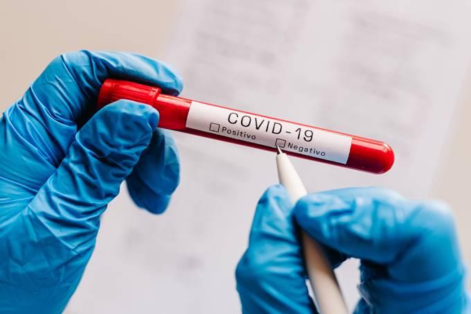 Dá para confiar 100% no resultado negativo em testes de Covid-19?