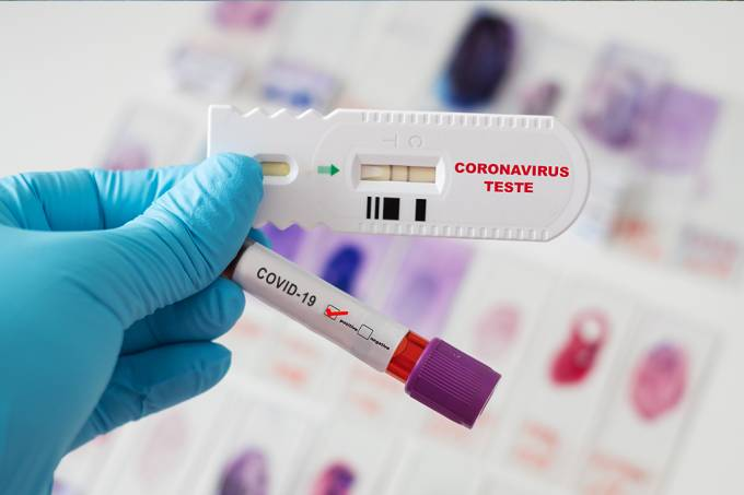 IgM ou IgC: como interpretar os resultados de testes de covid-19