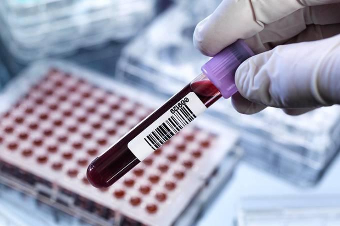 Exame de sangue pode detectar câncer anos antes da aparição de sintomas