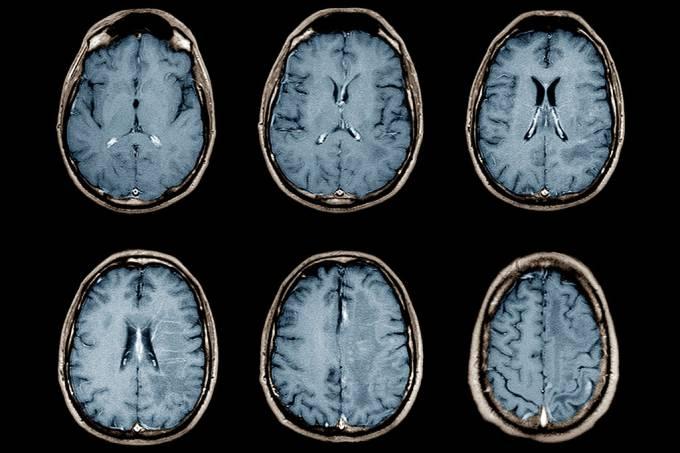 Covid-19 modifica a anatomia cerebral, revela estudo