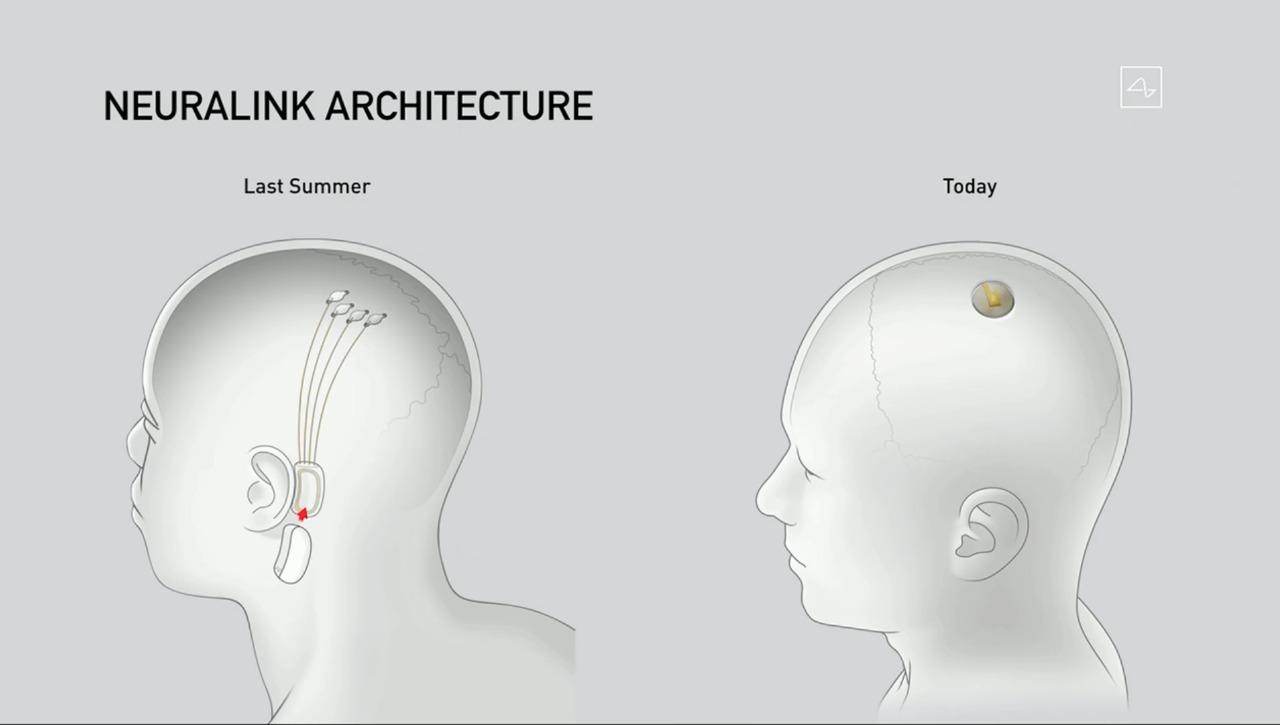 Ao vivo no YouTube, Elon Musk demonstrou implante cerebral Neuralink em porcos