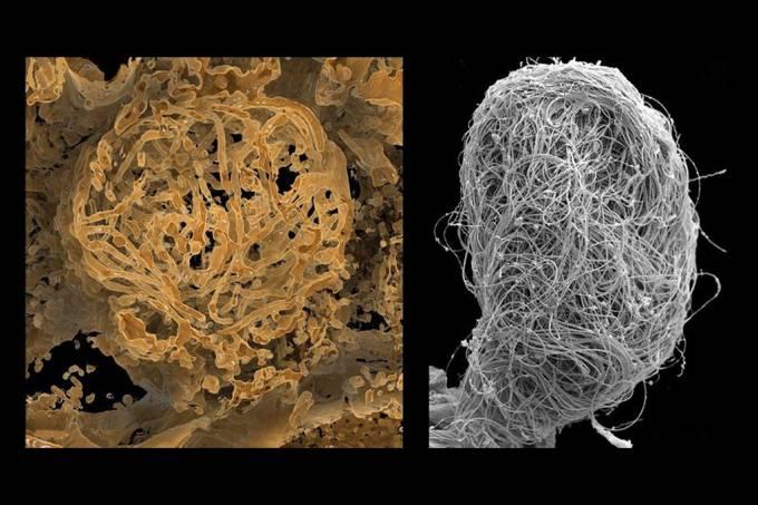 Esperma animal de 100 mil anos é encontrado preservado no âmbar