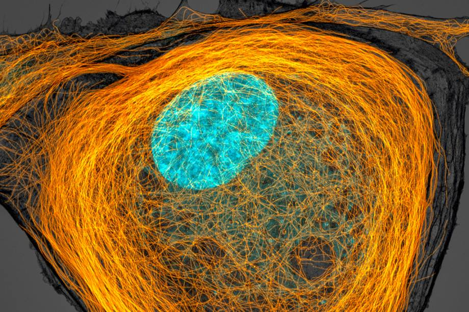 7º lugar: Em laranja, os microtúbulos – filamentos de proteína – das paredes de uma célula. Em azul, o seu núcleo.