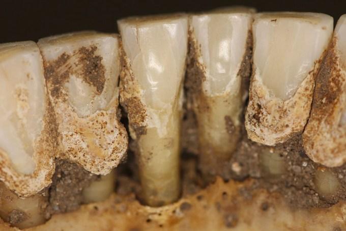Tártaro dentário pode revelar quais drogas os povos antigos consumiam