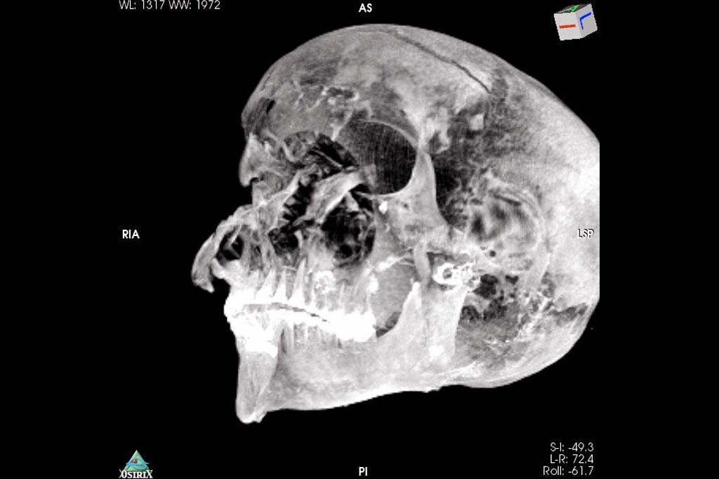 Imagem 3D do crânio do faraó.