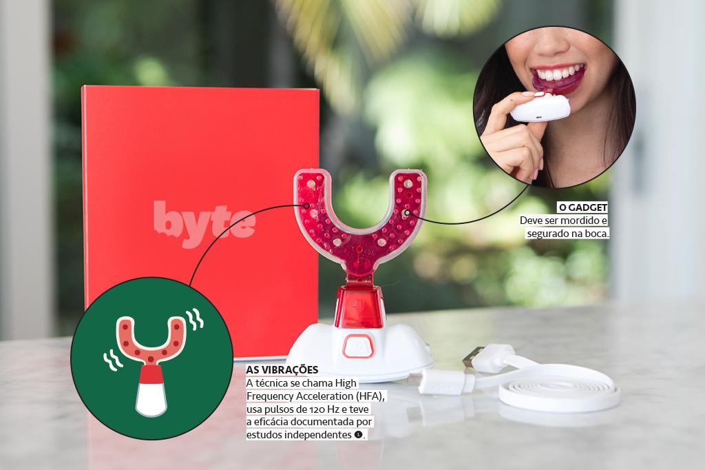 Dispositivo Byte para alinhamento dental.