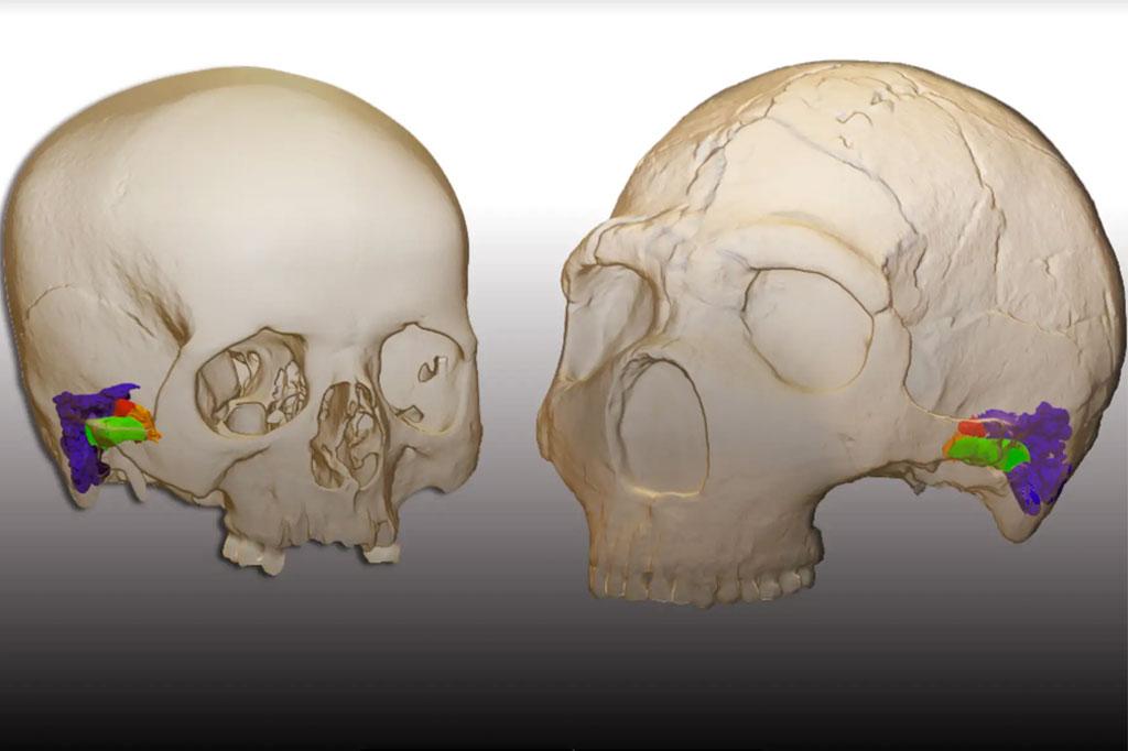 Imagem 3D de dois crânios.